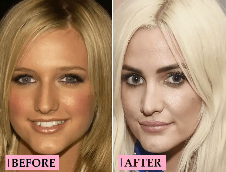 Ashlee Simpson Plastic Surgery Transformation: Before After