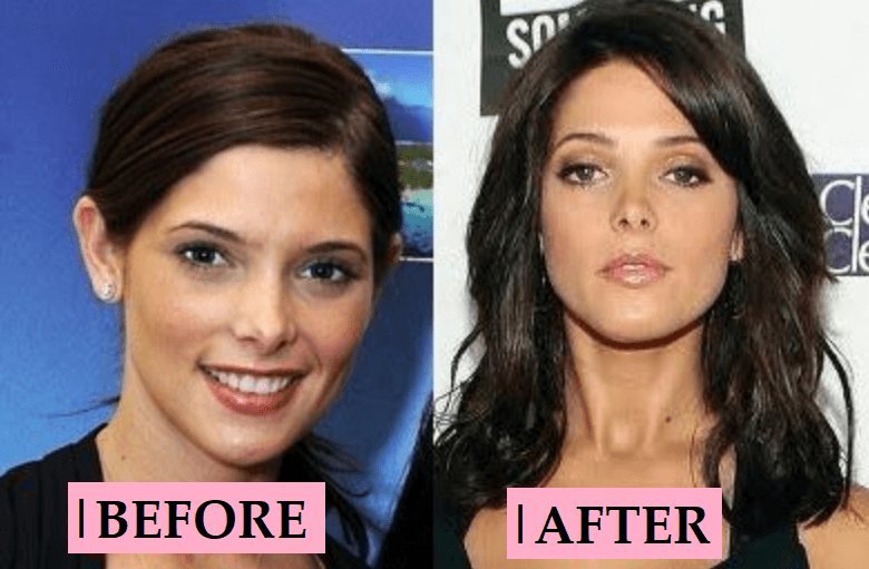 Ashley Greene Nose Job: Before and After Plastic Surgery