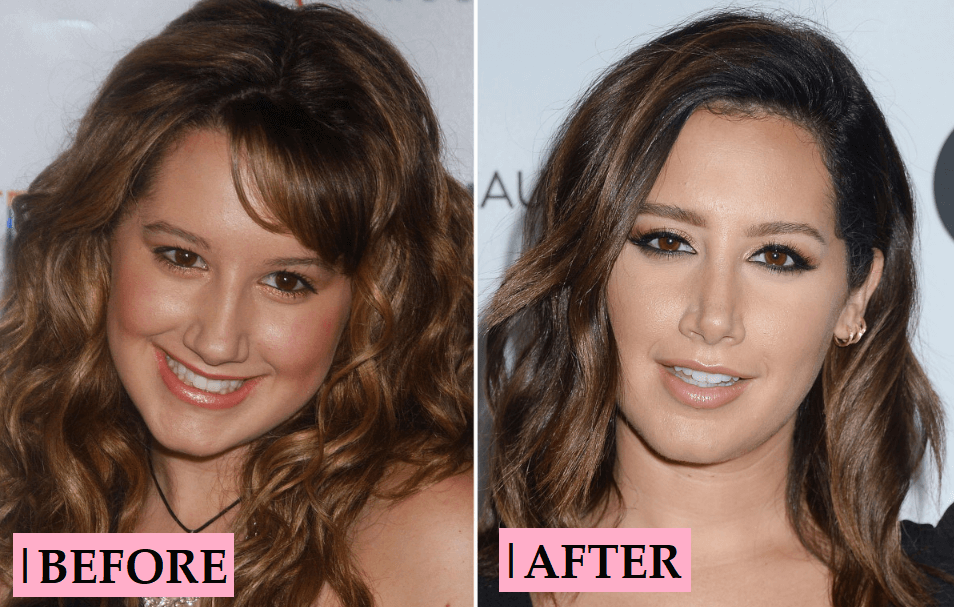 Ashley Tisdale Plastic Surgery Transformation: Before After