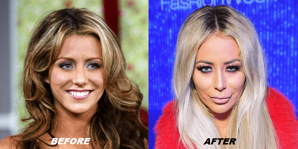 Aubrey O'Day Plastic Surgery Before and After - The Truth