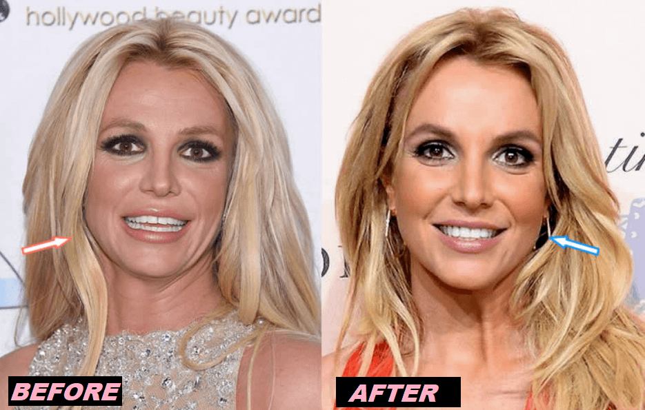 Britney Spears Plastic Surgery Before and After - The Truth