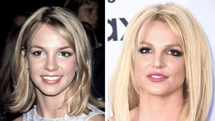 Britney Spears Procedures- Were they Examples of Plastic Surgery Fails