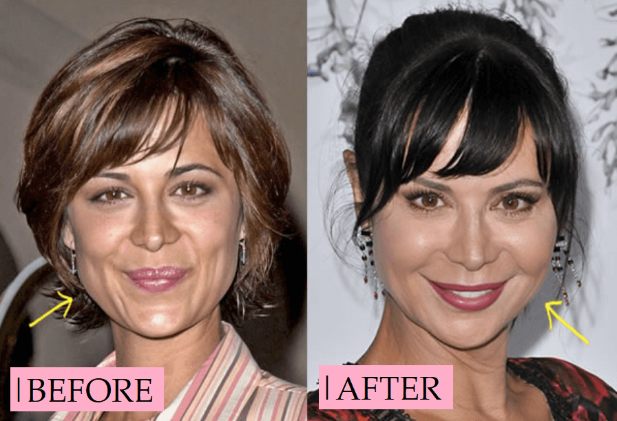 Catherine Bell Plastic Surgery Transformation: Before After
