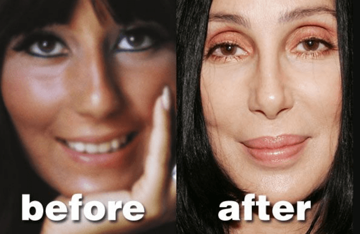Cher Before and After Surgery