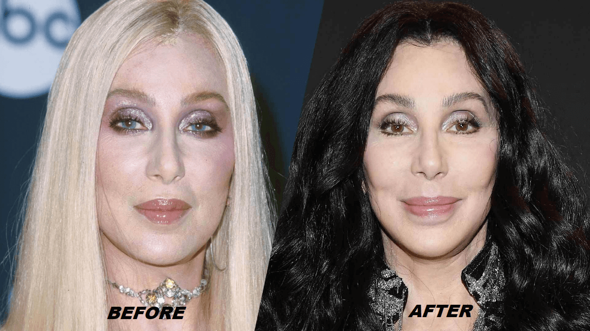 Cher Plastic Surgery Before and After - The Truth