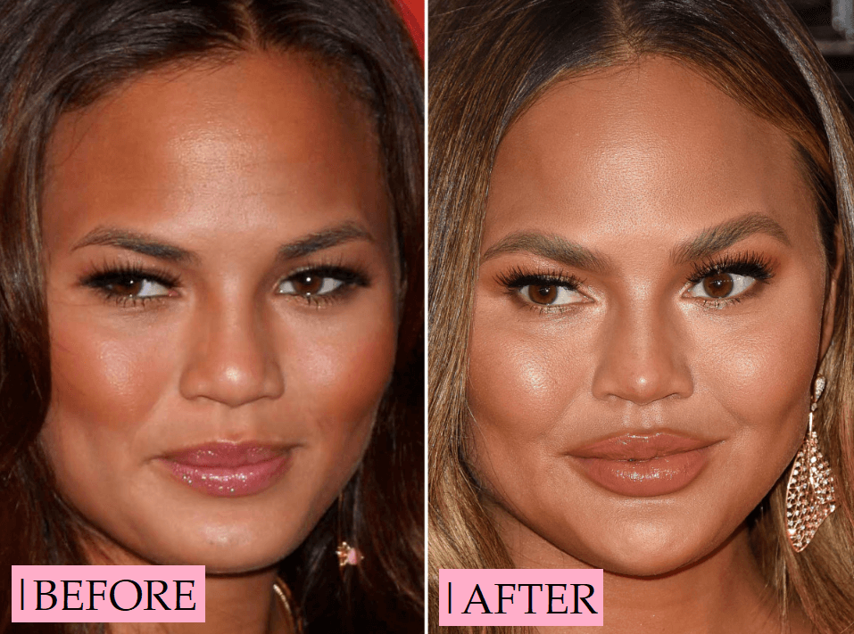 Chrissy Teigen Plastic Surgery Transformation: Before After