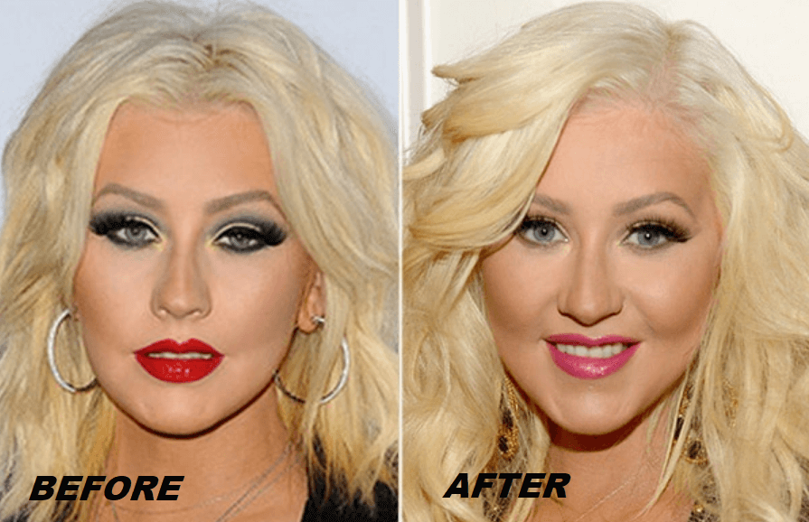 Christina Aguilera Plastic Surgery Before and After - The Truth