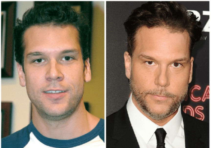 Dane Cook Before After