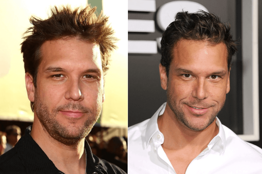 Dane Cook Plastic Surgery Transformation Before and After