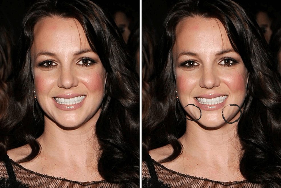 Did Britney Spears Have Reconstructive Surgery