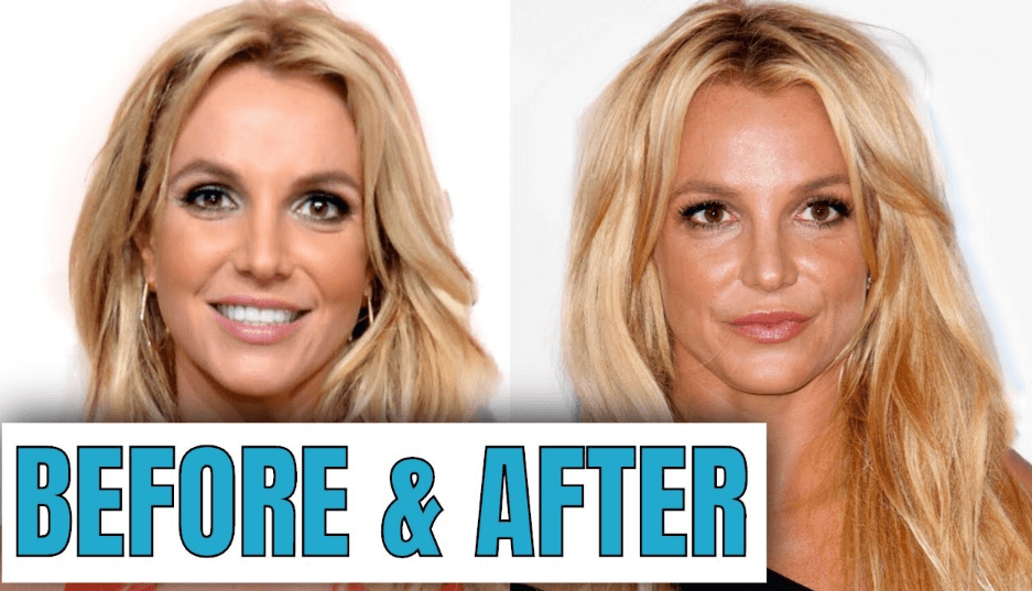 Did Britney Spears Level Up with Plastic Surgery