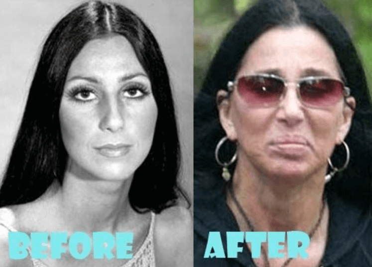 Did Cher Get Surgery