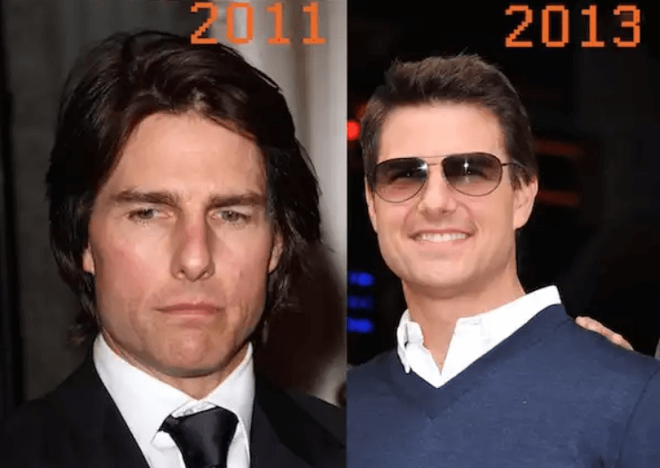 Did Tom Cruise get a facelift