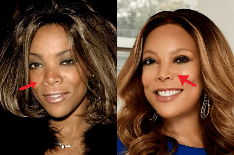 Did Wendy Williams Get plastic Surgery