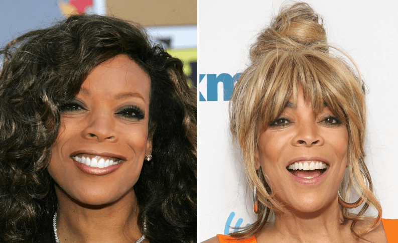 Did Wendy Williams have plastic Surgery