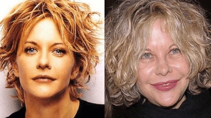 Does Meg Ryan have a history with Botox