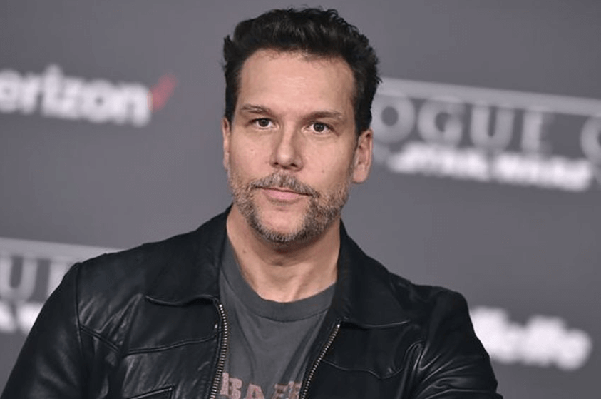 Fact About Dane Cook Plastic Surgery