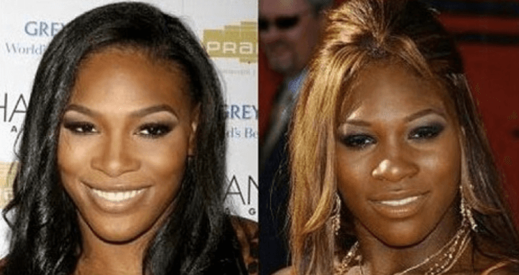 Has Serena Williams Gone Under the Knife