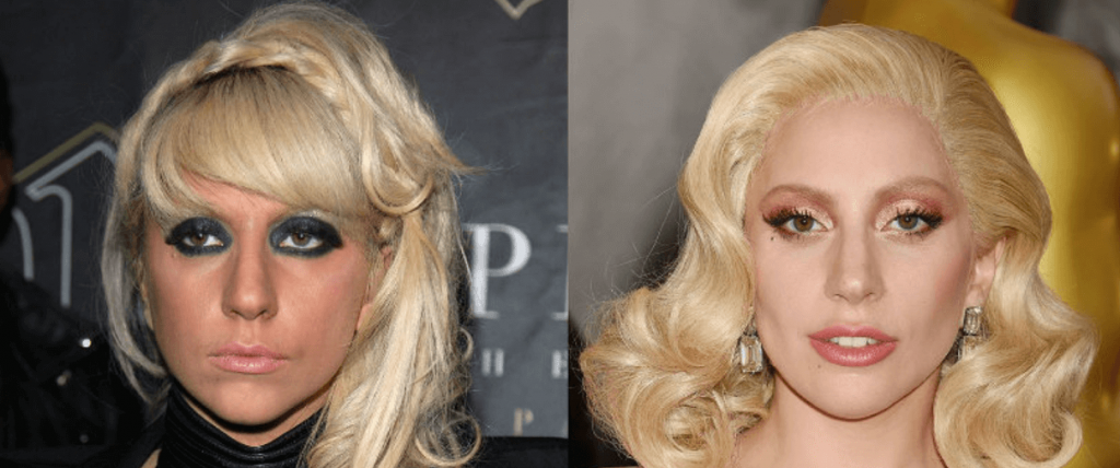 How Lady Gaga Looks Like Before After Surgery