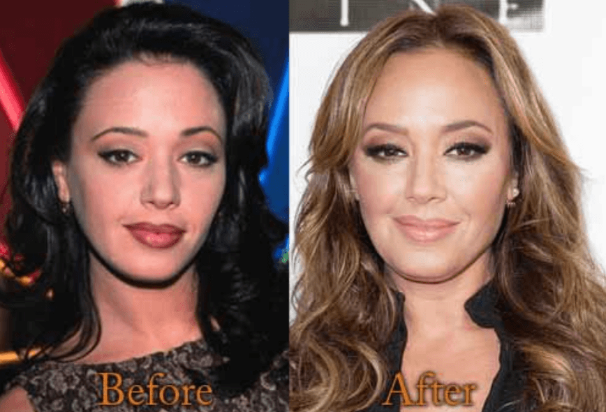 How Leah Remini Looks Like After Plastic Surgery
