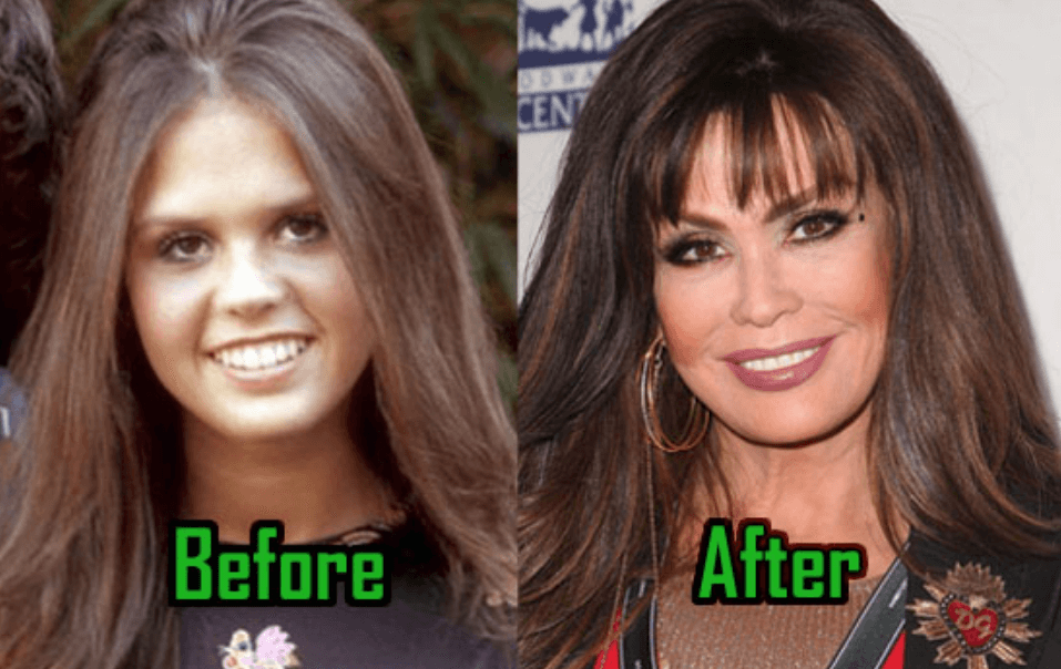 How Marie Osmond Lips Before After
