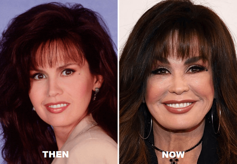 How Marie Osmond Lokks Like After Cosmetic Surgery