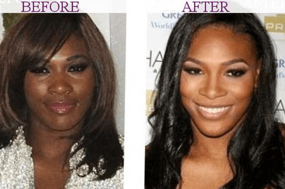 Is there a Gone Right or Gone Bad Phase for Serena Williams