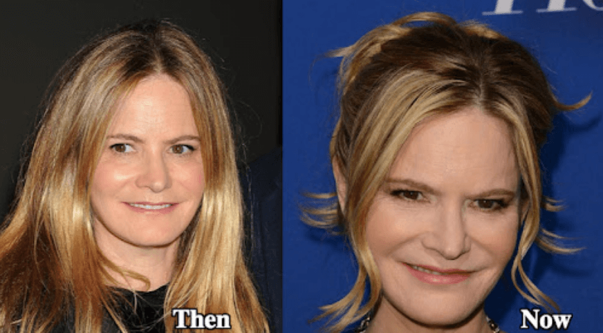 Jennifer Jason Leigh Plastic Surgery Before and After Pictures