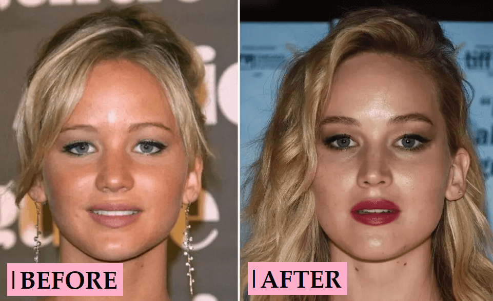 Jennifer Lawrence Nose Job: Before and After Plastic Surgery