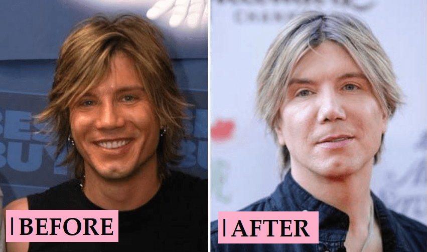 Johnny Rzeznik Plastic Surgery Rumors: Before After Transformation