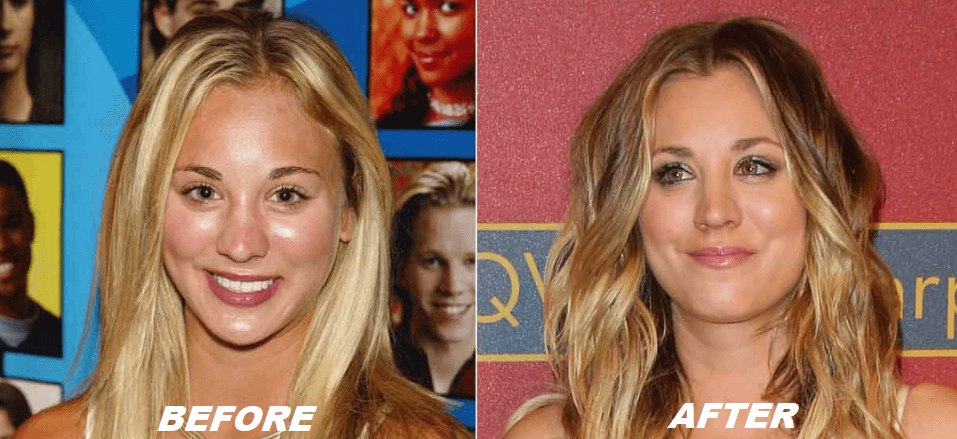 Kaley Cuoco Plastic Surgery Before After - The Truth
