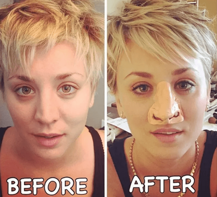 Kaley Cuoco plastic surgery before and after images