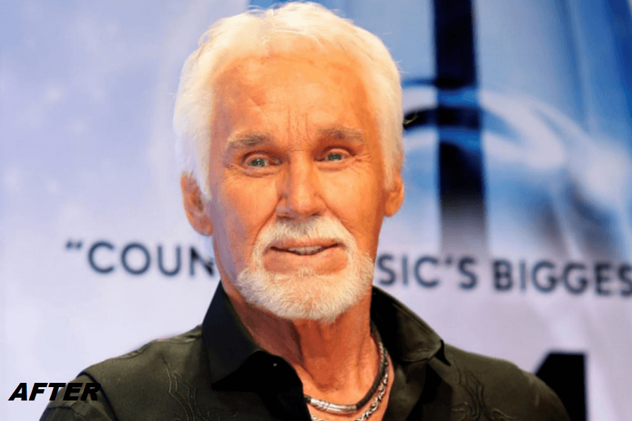 Kenny Rogers After Plastic Surgery