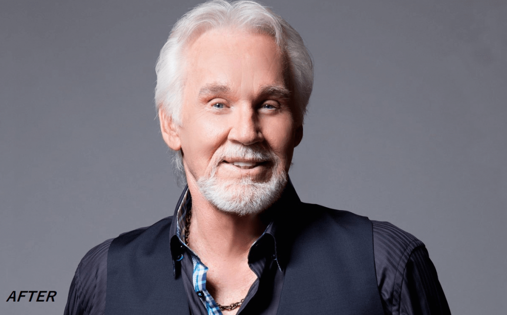Kenny Rogers After Surgery