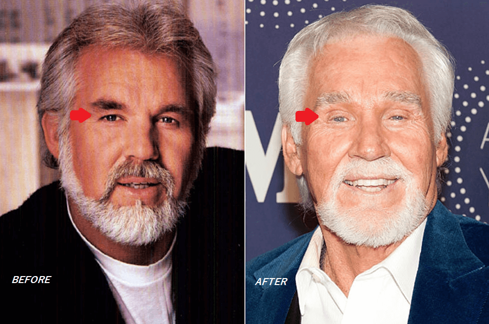 Kenny Rogers Plastic Surgery Before and After - The Truth