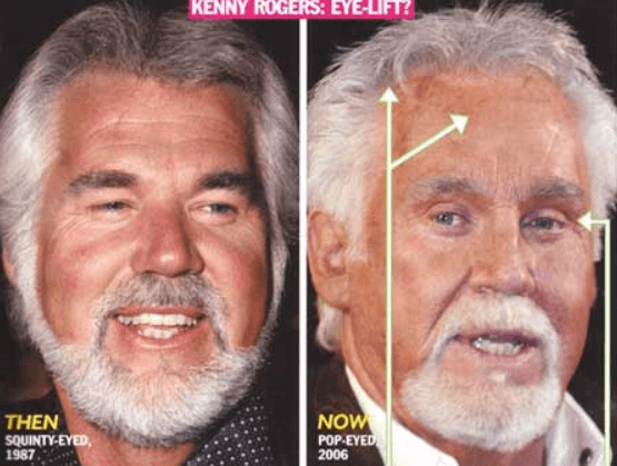 Kenny Rogers Then and Now