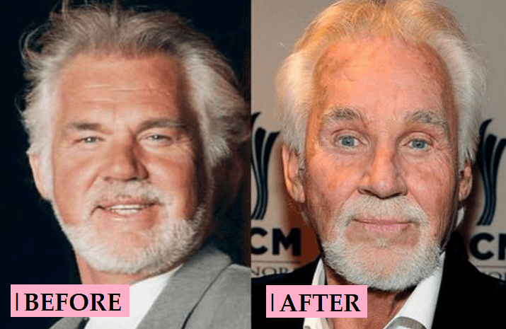 Kenny Rogers Transformations