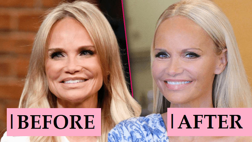 Kristin Chenoweth Plastic Surgery Rumor: Before and After Photo