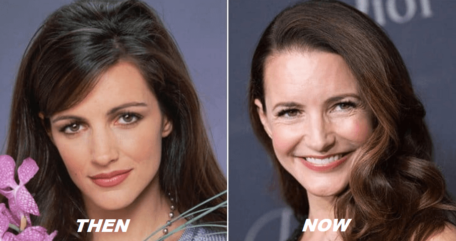Kristin Davis Plastic Surgery Before and After - The Truth