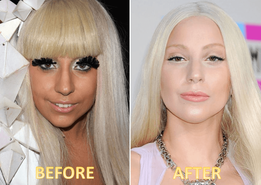 Lady Gaga Plastic Surgery Before and After - The Truth