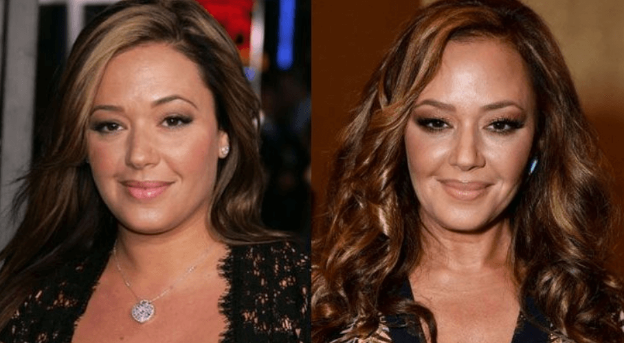 Leah Remini Before After Plastic Surgery