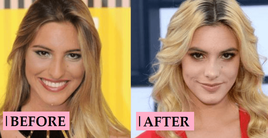 Lele Pons Plastic Surgery: Nose Job Before and After Photo