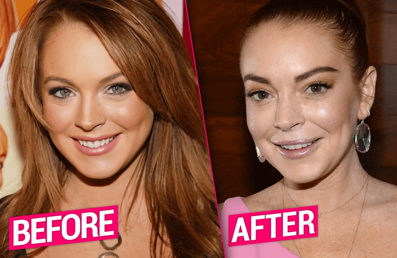 Lindsay Lohan Plastic Surgery Before and After - The Truth