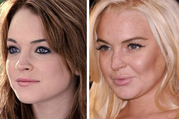 Lindsay Lohan Surgery Before After