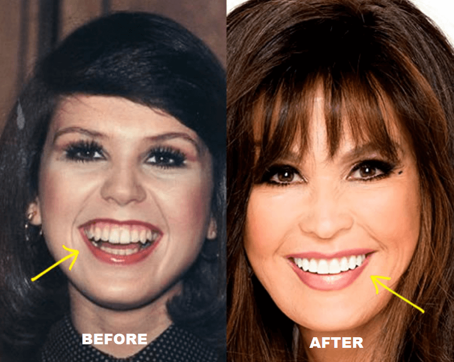 Marie Osmond Before After Surgery Pictures