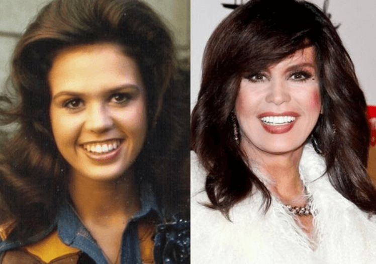 Marie Osmond Before and After Surgery