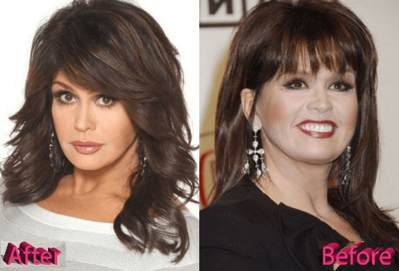 Marie Osmond Cosmetic Surgery Before After