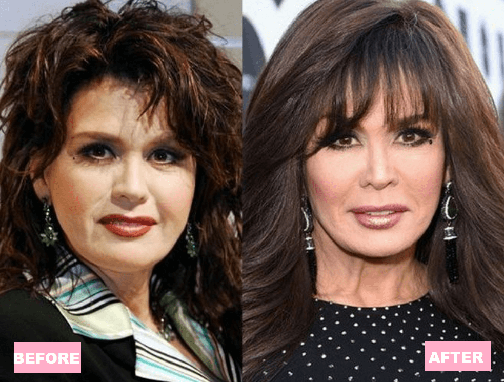 Marie Osmond Plastic Surgery Before and After
