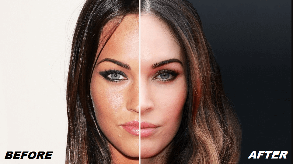 Megan Fox Plastic Surgery Before and After - The Truth