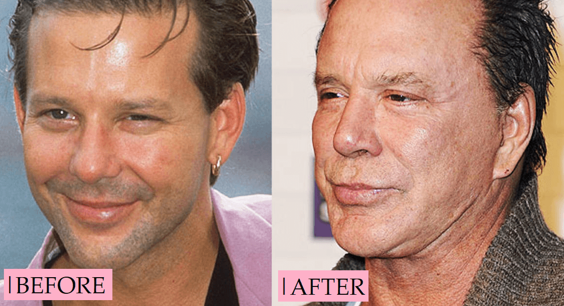Mickey Rourke Plastic Surgery Before And After Transformation